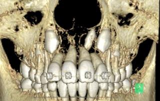 CT-P1.jpg